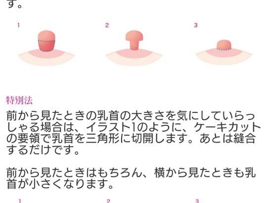 【悲報】まんさん ヤリマンに思われたくなくて27万円かけて乳首を小さくしていた……